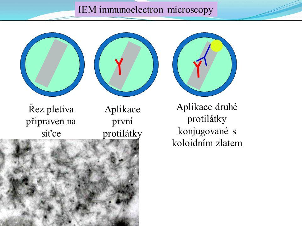 IEM immunoelectron microscopy Řez pletiva připraven na síťce Aplikace první protilátky Aplikace druhé protilátky konjugované s koloidním zlatem