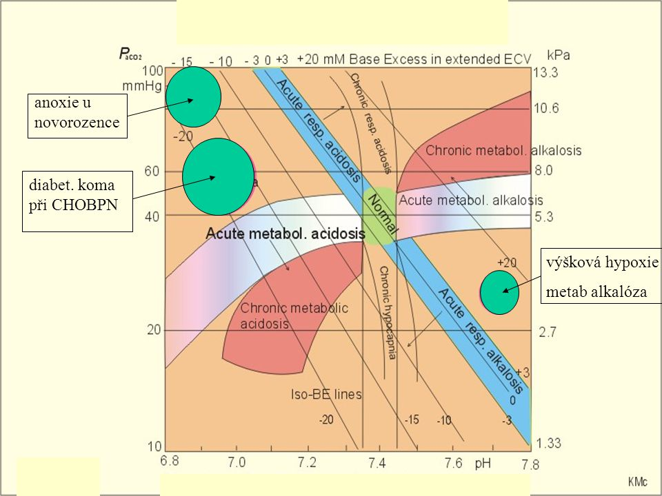 Zvracení zvracení ztráty H + a Cl - pH prox.tubuly reabsorpce Na + a Cl - nabídka Na + dist.