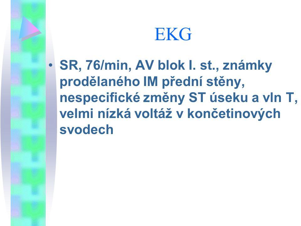 EKG SR, 76/min, AV blok I. st., známky prodělaného IM přední stěny, nespecifické změny ST úseku a vln T, velmi nízká voltáž v končetinových svodech