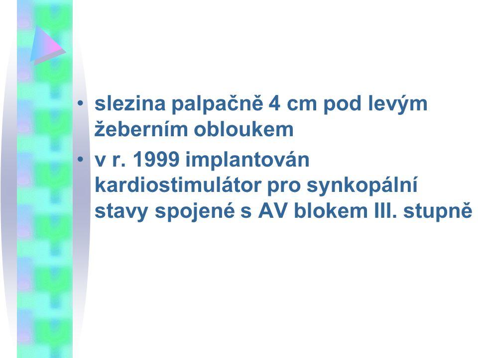 slezina palpačně 4 cm pod levým žeberním obloukem v r. 1999 implantován kardiostimulátor pro synkopální stavy spojené s AV blokem III. stupně