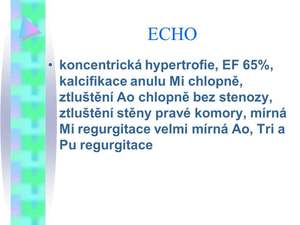 ECHO koncentrická hypertrofie, EF 65%, kalcifikace anulu Mi chlopně, ztluštění Ao chlopně bez stenozy, ztluštění stěny pravé komory, mírná Mi regurgitace velmi mírná Ao, Tri a Pu regurgitace