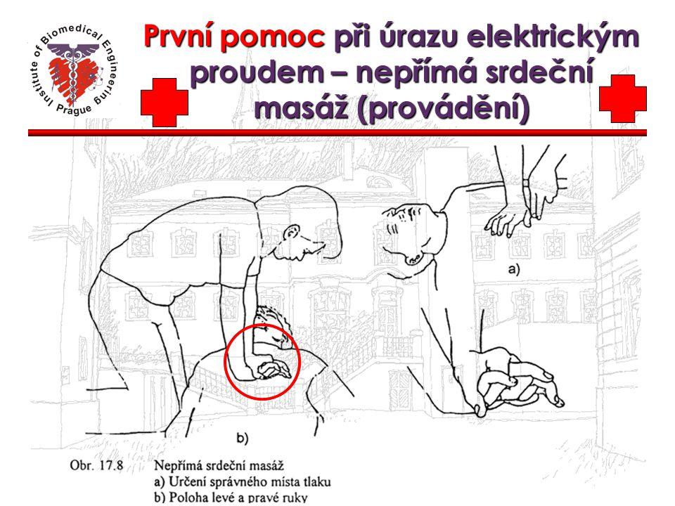 První pomoc při úrazu elektrickým proudem – nepřímá srdeční masáž (provádění)