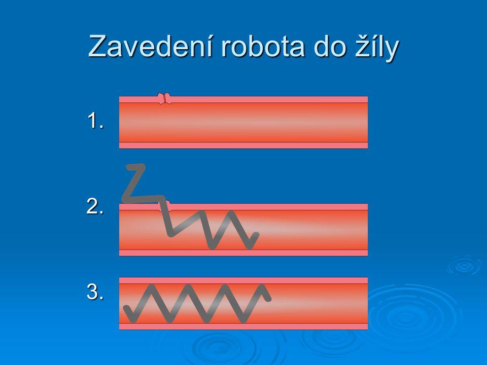 Zavedení robota do žíly 1.2.3.