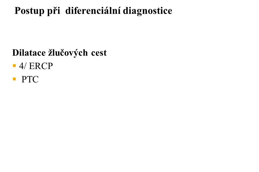 Dilatace žlučových cest  4/ ERCP  PTC Postup při diferenciální diagnostice