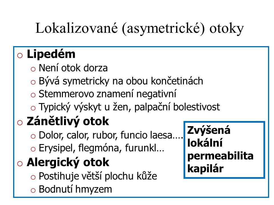 Lokalizované (asymetrické) otoky o Lipedém o Není otok dorza o Bývá symetricky na obou končetinách o Stemmerovo znamení negativní o Typický výskyt u ž