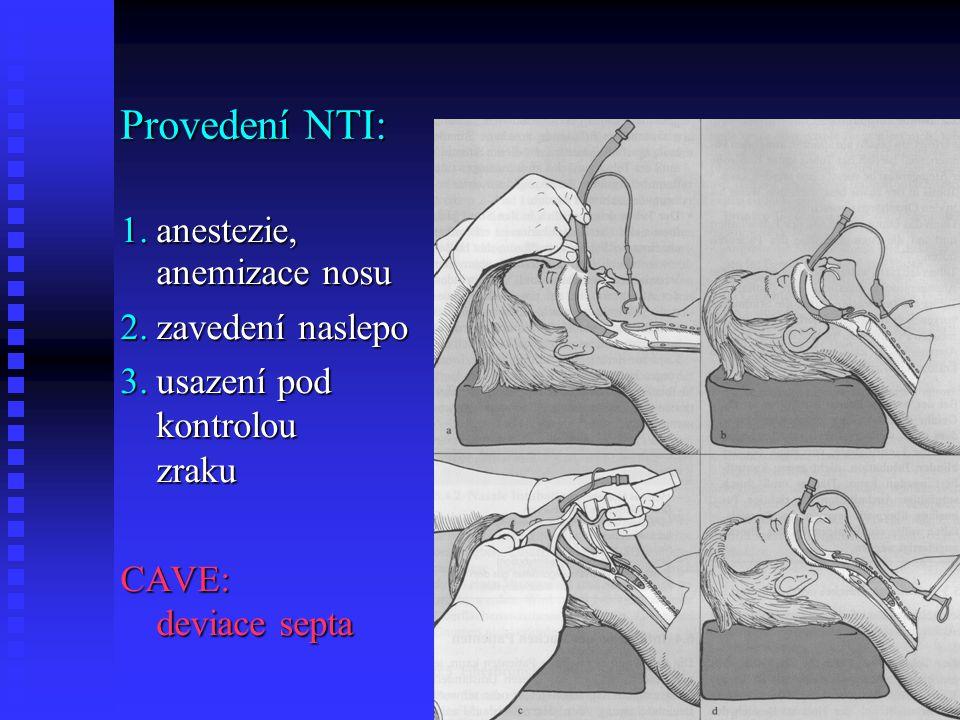 Provedení NTI: 1.anestezie, anemizace nosu 2.zavedení naslepo 3.usazení pod kontrolou zraku CAVE: deviace septa