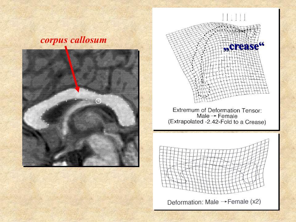 """corpus callosum splenium """"crease"""