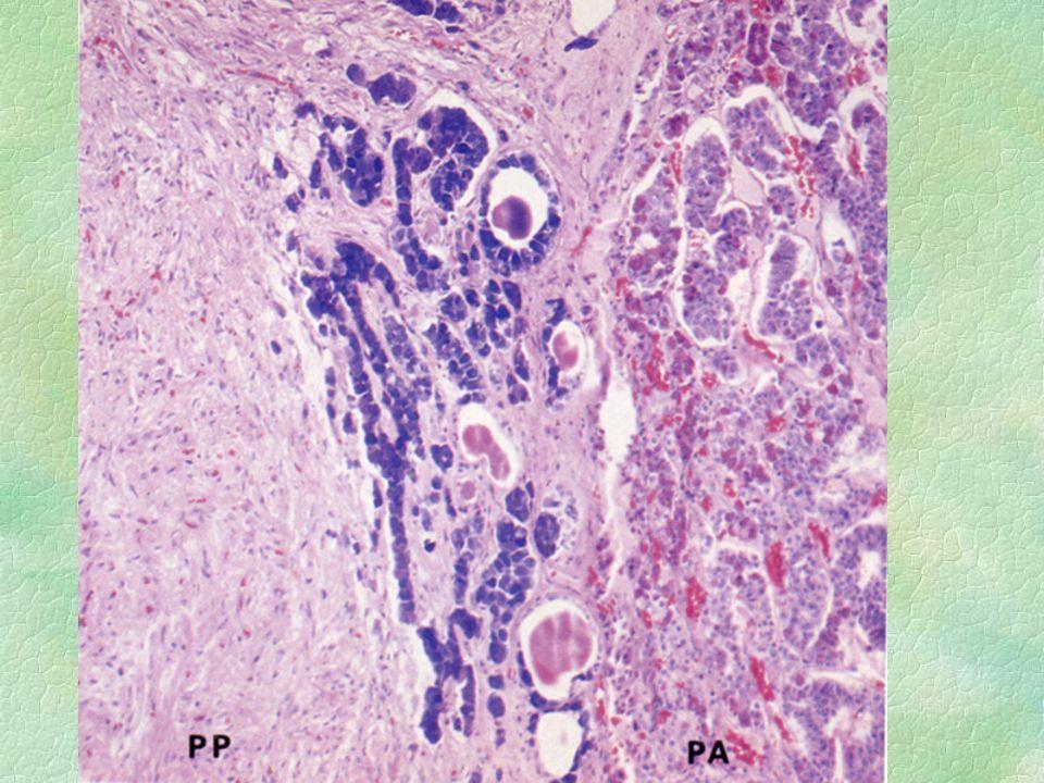 Pars intermedia §rudimentární §buňky tvoří trámce §bazofilní bb §může být vytvořen váček