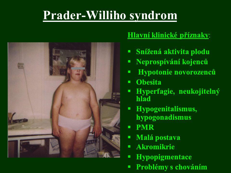 Prader-Williho syndrom Hlavní klinické příznaky:  Snížená aktivita plodu  Neprospívání kojenců  Hypotonie novorozenců  Obesita  Hyperfagie, neuko