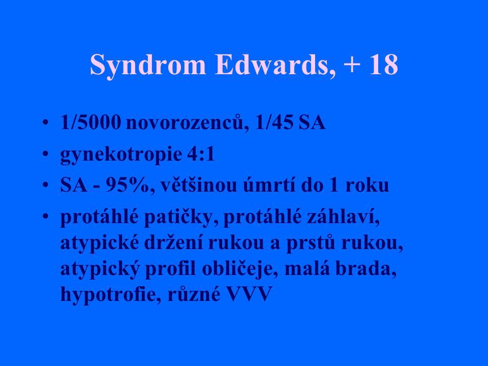 Syndrom Edwards, + 18 1/5000 novorozenců, 1/45 SA gynekotropie 4:1 SA - 95%, většinou úmrtí do 1 roku protáhlé patičky, protáhlé záhlaví, atypické drž