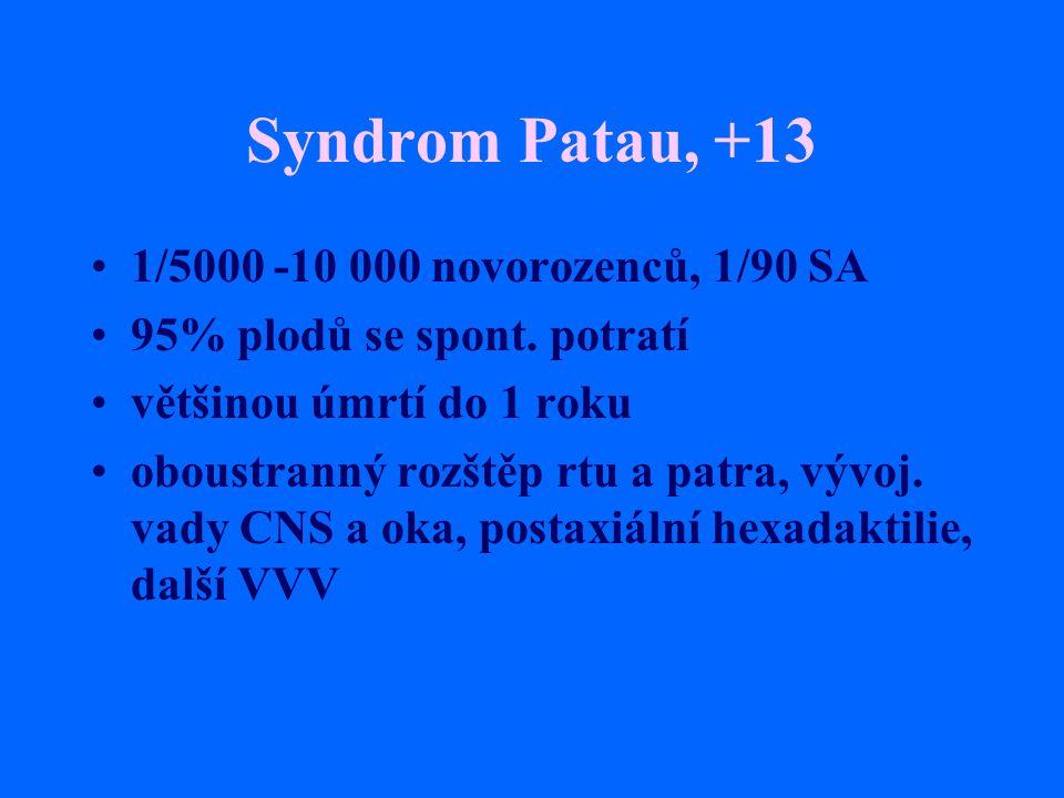 Syndrom Patau, +13 1/5000 -10 000 novorozenců, 1/90 SA 95% plodů se spont. potratí většinou úmrtí do 1 roku oboustranný rozštěp rtu a patra, vývoj. va