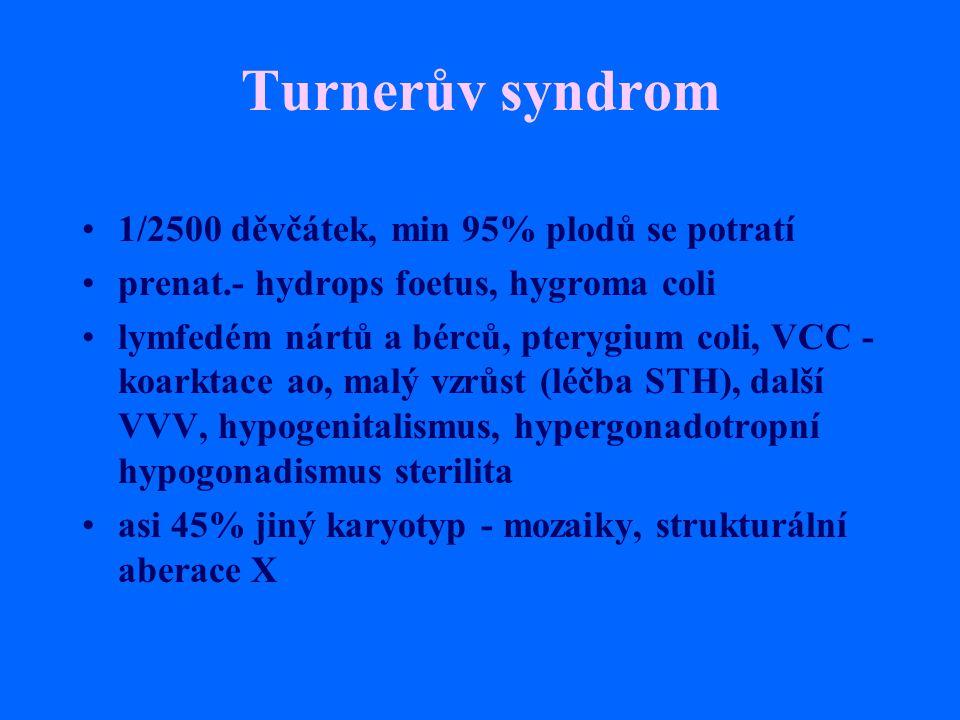 Turnerův syndrom 1/2500 děvčátek, min 95% plodů se potratí prenat.- hydrops foetus, hygroma coli lymfedém nártů a bérců, pterygium coli, VCC - koarkta