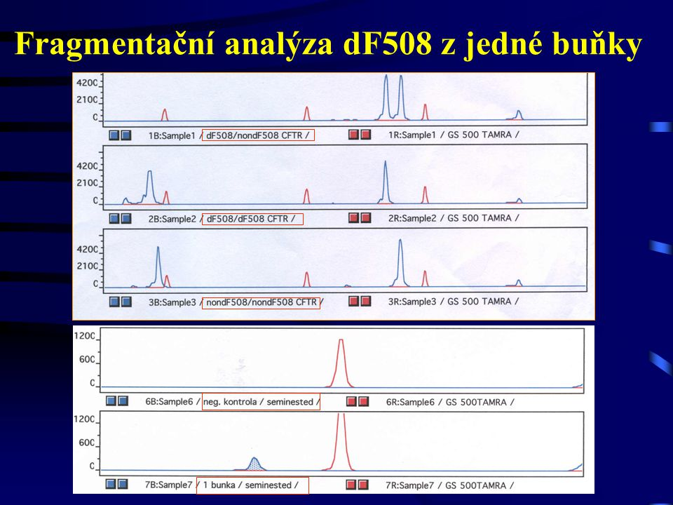 Fragmentační analýza dF508 z jedné buňky