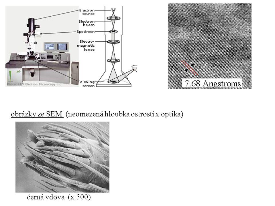 obrázky ze SEM (neomezená hloubka ostrosti x optika) černá vdova (x 500)