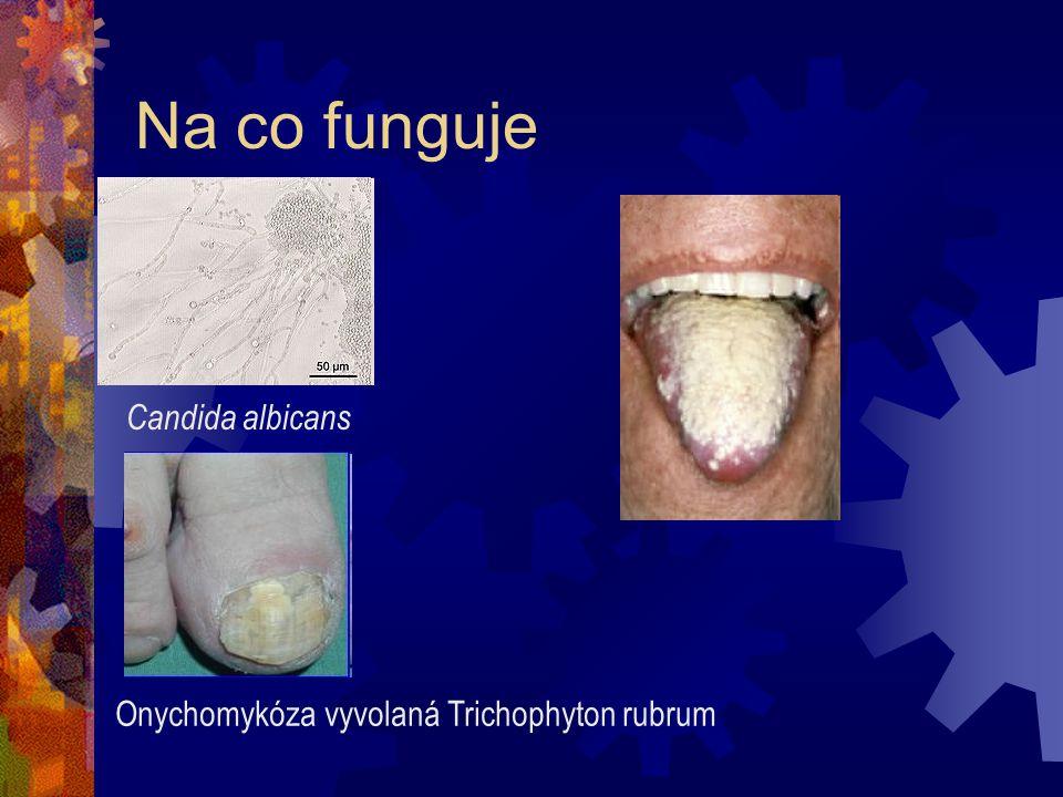 Na co funguje Onychomykóza vyvolaná Trichophyton rubrum Candida albicans