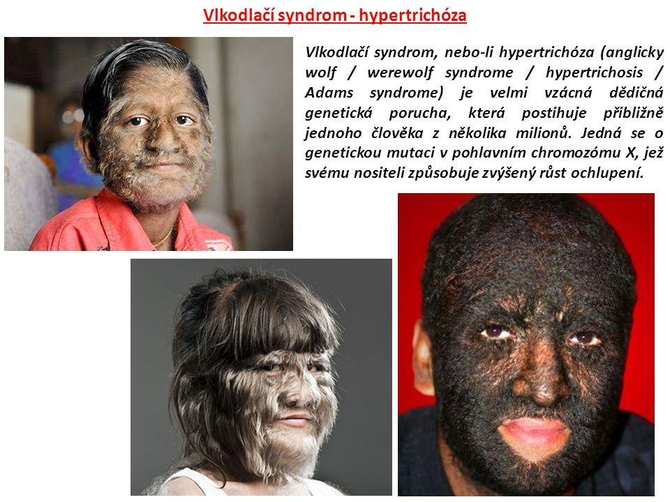 Vlkodlačí syndrom, nebo-li hypertrichóza (anglicky wolf / werewolf syndrome / hypertrichosis / Adams syndrome) je velmi vzácná dědičná genetická poruc