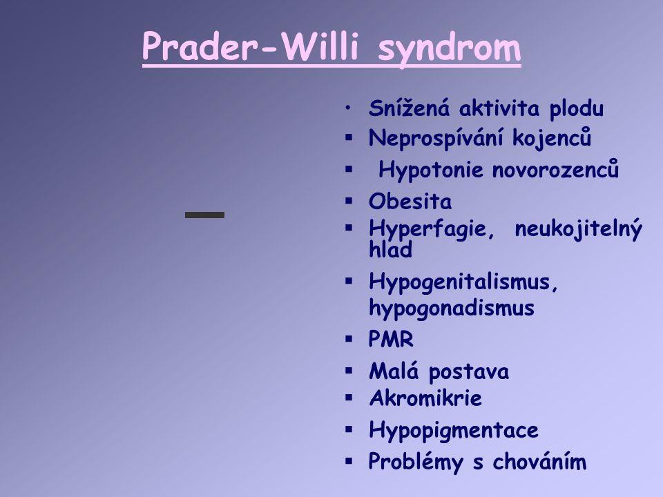Prader-Willi syndrom Snížená aktivita plodu  Neprospívání kojenců  Hypotonie novorozenců  Obesita  Hyperfagie, neukojitelný hlad  Hypogenitalismu