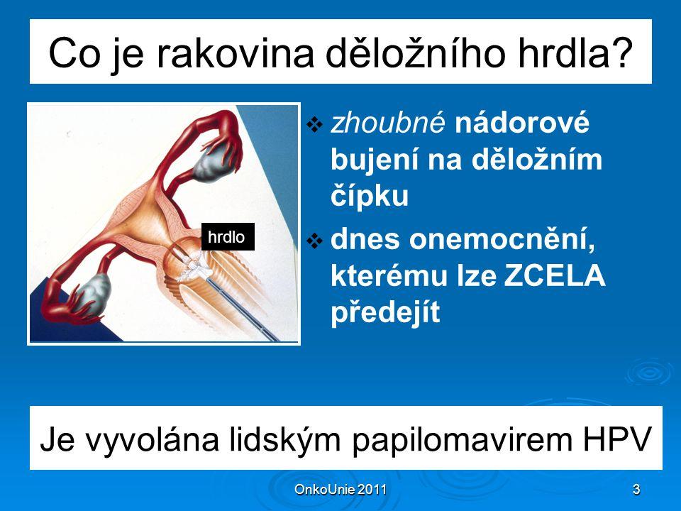 OnkoUnie 20114 Rakovina hrdla na světě ročně zahubí 275 000 žen
