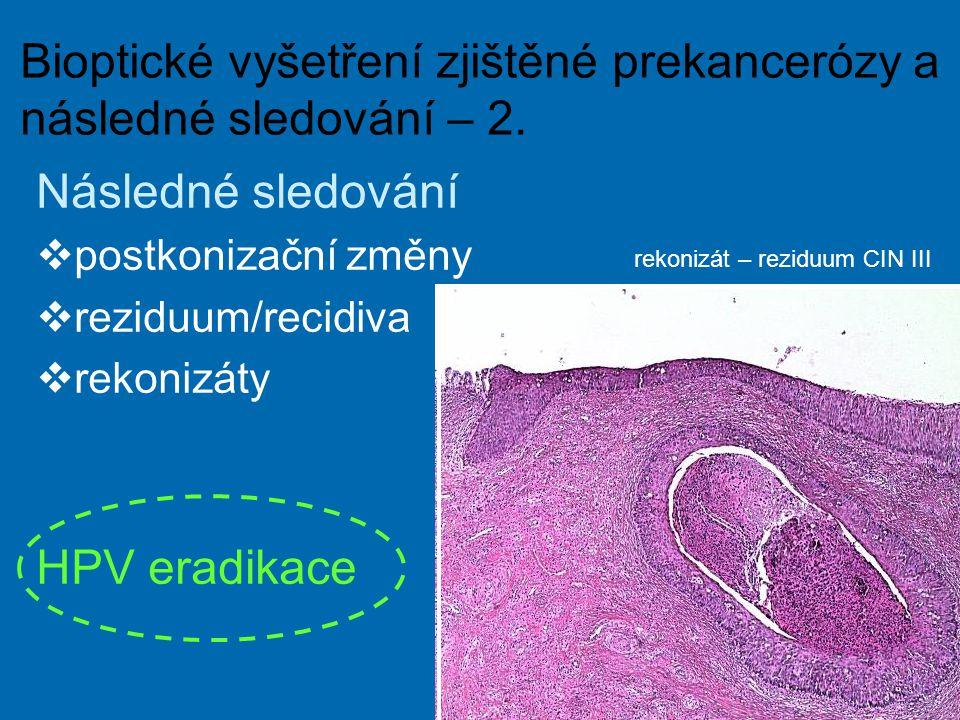 Bioptické vyšetření zjištěné prekancerózy a následné sledování – 2.