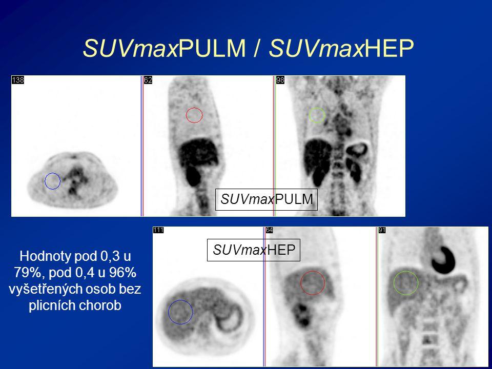SUVmaxPULM / SUVmaxHEP Hodnoty pod 0,3 u 79%, pod 0,4 u 96% vyšetřených osob bez plicních chorob SUVmaxPULM SUVmaxHEP