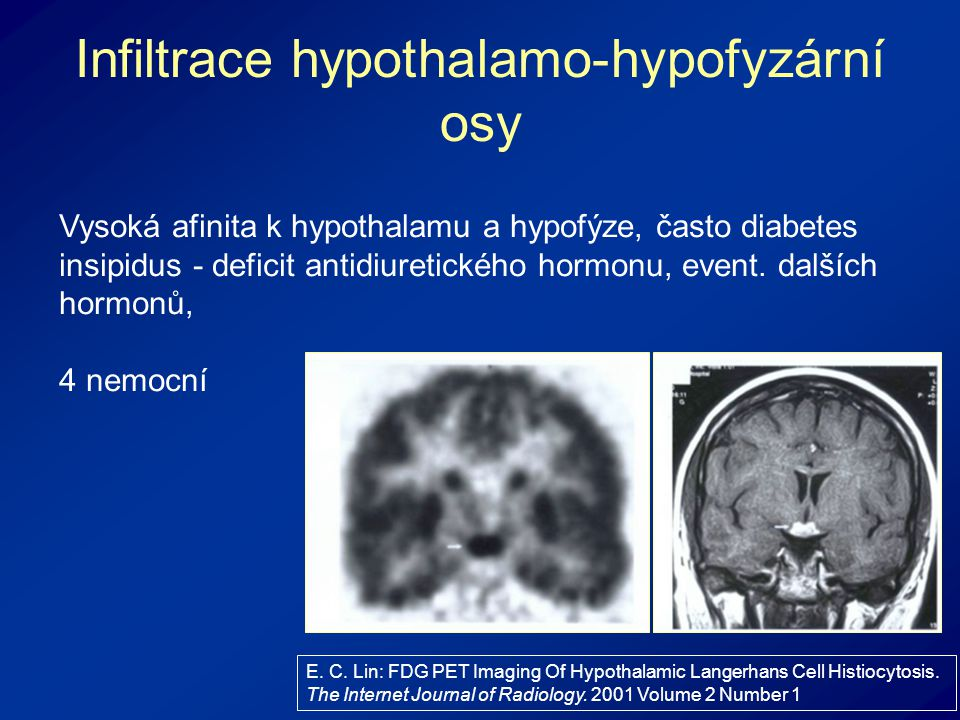 Infiltrace hypothalamo-hypofyzární osy E. C. Lin: FDG PET Imaging Of Hypothalamic Langerhans Cell Histiocytosis. The Internet Journal of Radiology. 20