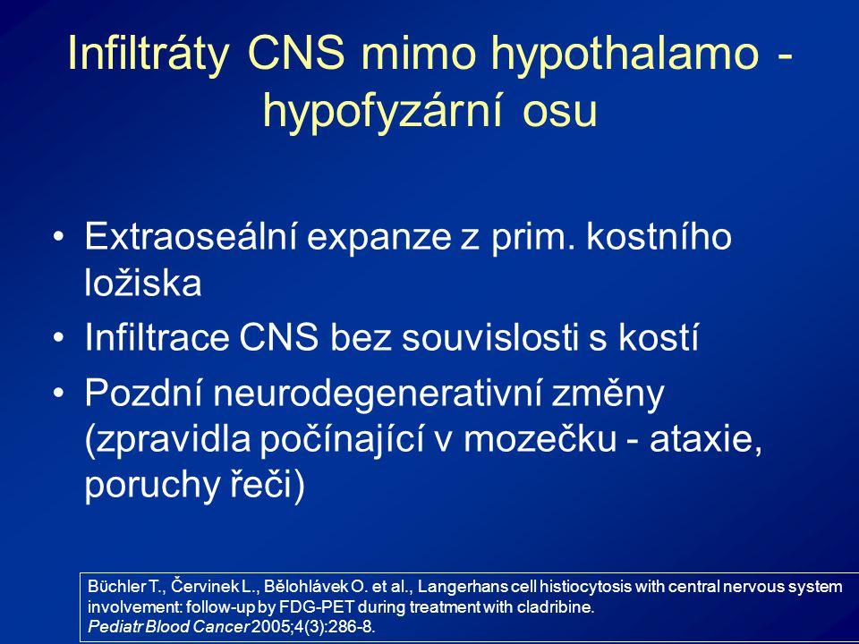 Infiltráty CNS mimo hypothalamo - hypofyzární osu Extraoseální expanze z prim.
