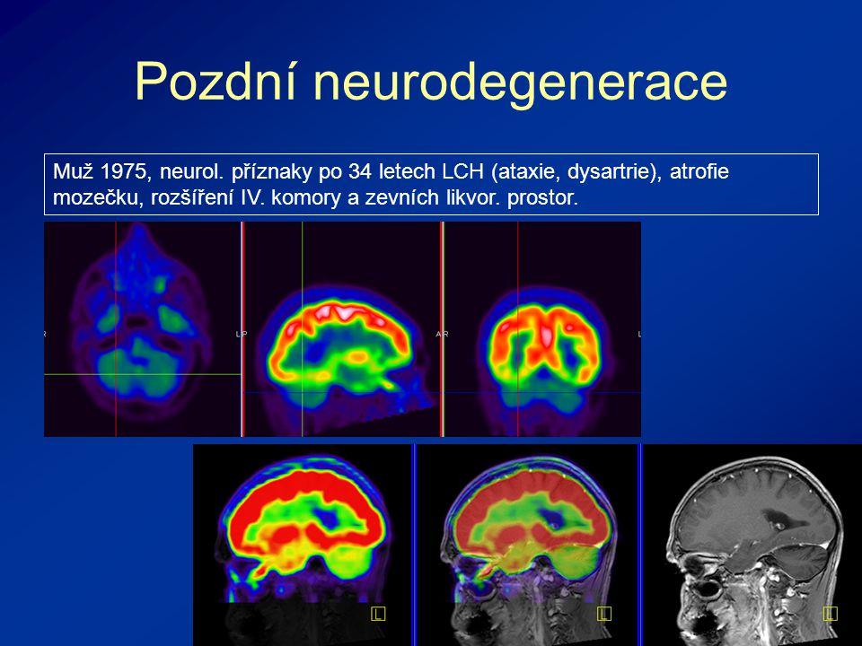 Pozdní neurodegenerace Muž 1975, neurol.