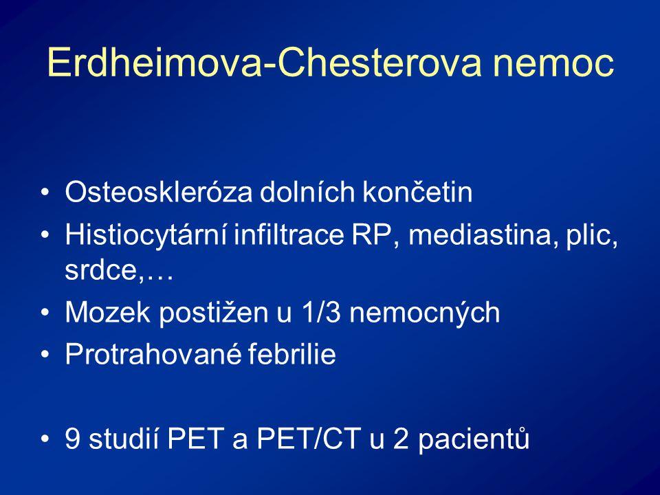 Erdheimova-Chesterova nemoc Osteoskleróza dolních končetin Histiocytární infiltrace RP, mediastina, plic, srdce,… Mozek postižen u 1/3 nemocných Protrahované febrilie 9 studií PET a PET/CT u 2 pacientů