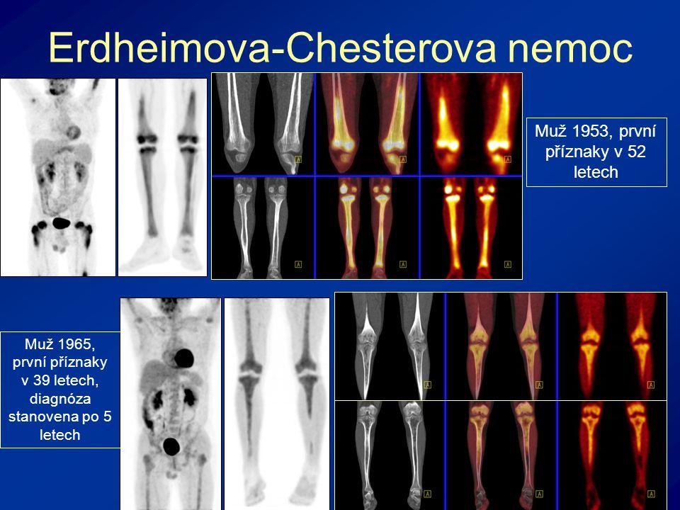 Erdheimova-Chesterova nemoc Muž 1965, první příznaky v 39 letech, diagnóza stanovena po 5 letech Muž 1953, první příznaky v 52 letech