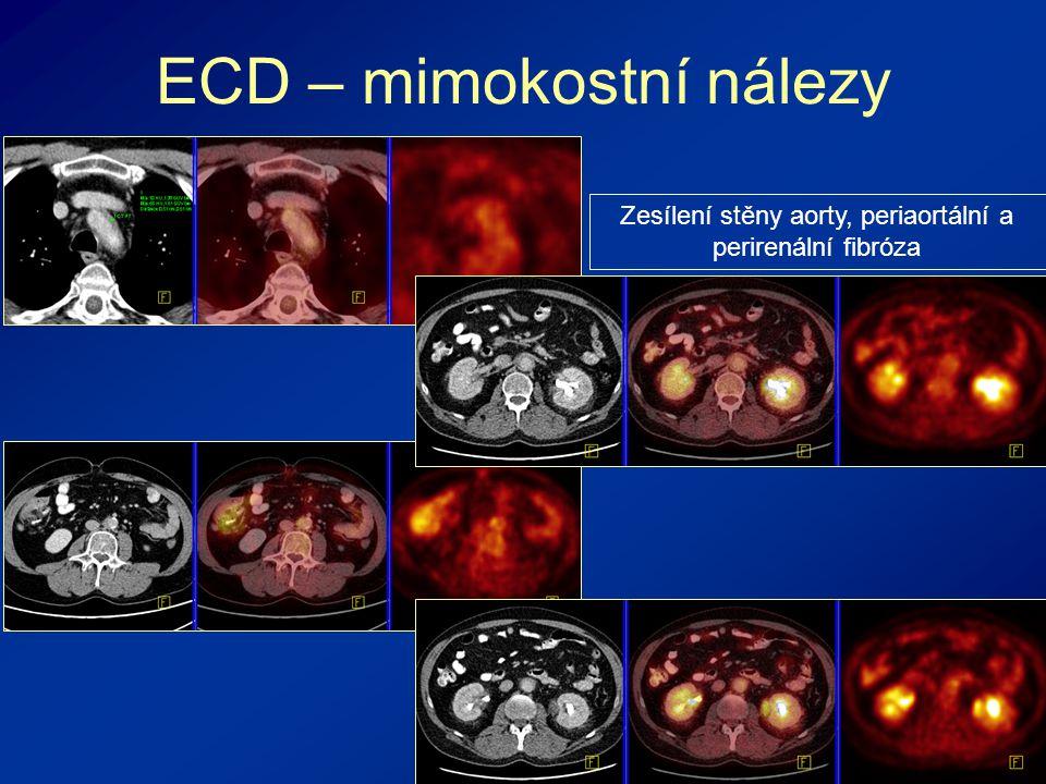 ECD – mimokostní nálezy Zesílení stěny aorty, periaortální a perirenální fibróza