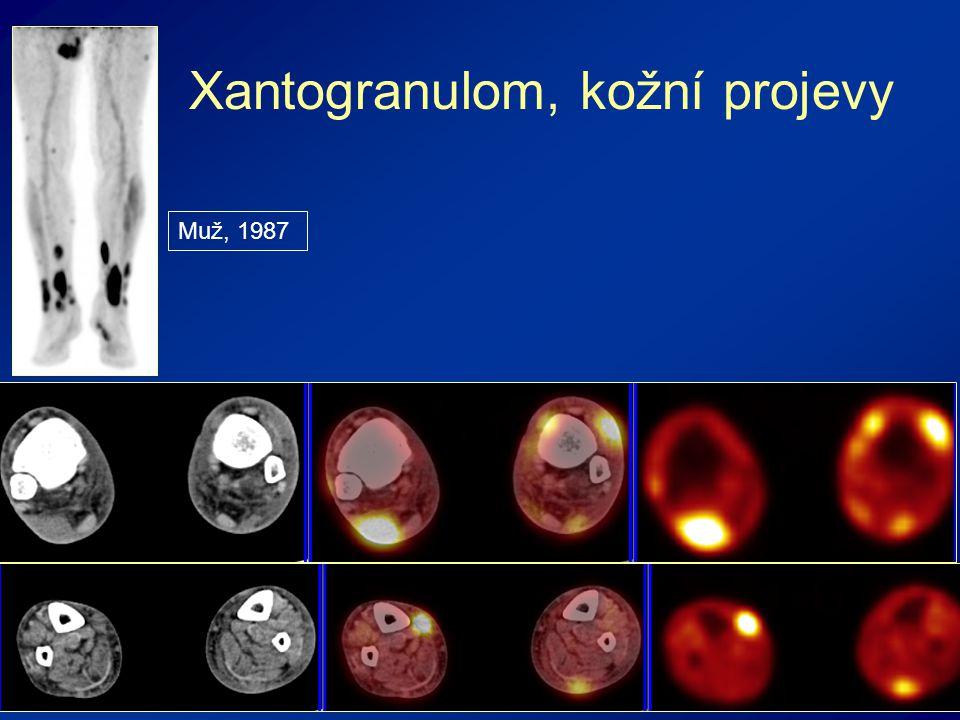 Xantogranulom, kožní projevy Muž, 1987
