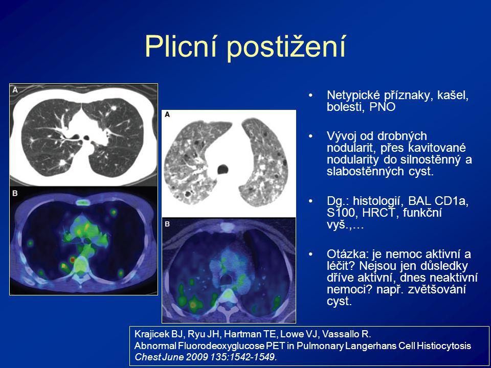Plicní postižení Netypické příznaky, kašel, bolesti, PNO Vývoj od drobných nodularit, přes kavitované nodularity do silnostěnný a slabostěnných cyst.