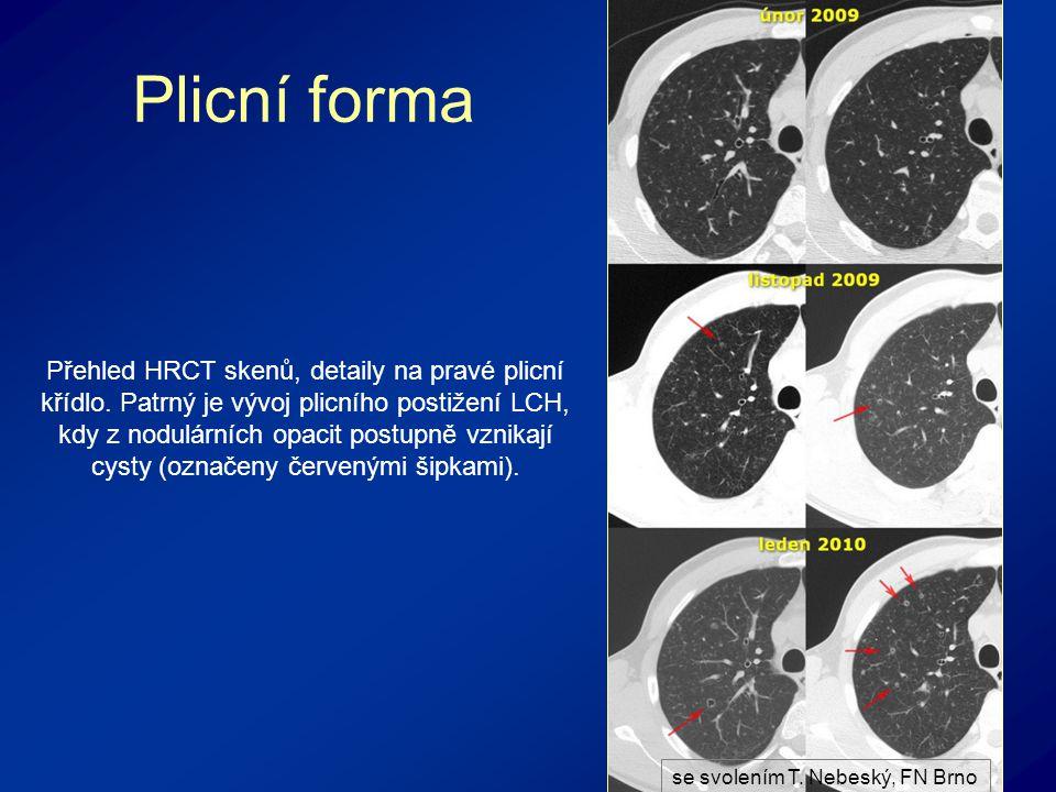 Plicní forma Přehled HRCT skenů, detaily na pravé plicní křídlo.
