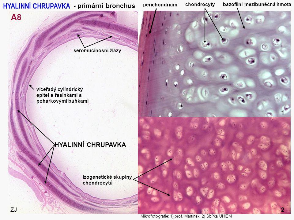 10 - primární bronchus perichondrium chondrocyty bazofilní mezibuněčná hmota HYALINNÍ CHRUPAVKA víceřadý cylindrický epitel s řasinkami a pohárkovými