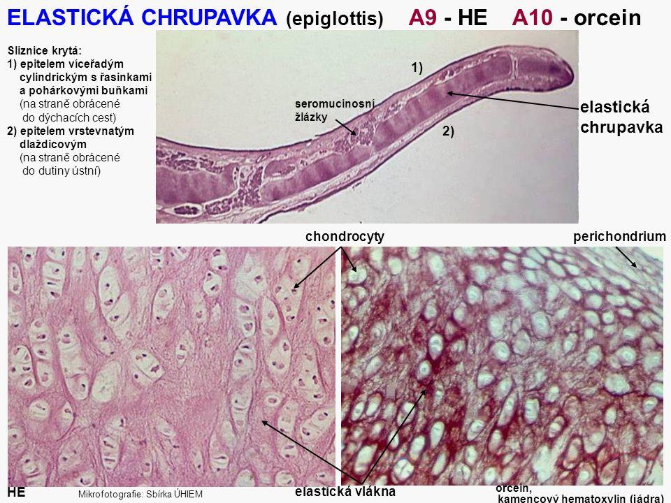 13 ELASTICKÁ CHRUPAVKA (epiglottis) A9 - HE A10 - orcein Sliznice krytá: 1) epitelem víceřadým cylindrickým s řasinkami a pohárkovými buňkami (na stra