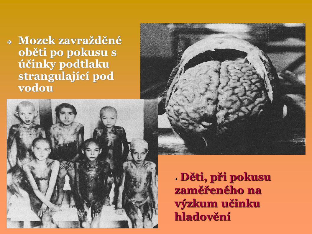  Mozek zavražděné oběti po pokusu s účinky podtlaku strangulající pod vodou Děti, při pokusu zaměřeného na výzkum učinku hladovění  Děti, při pokusu