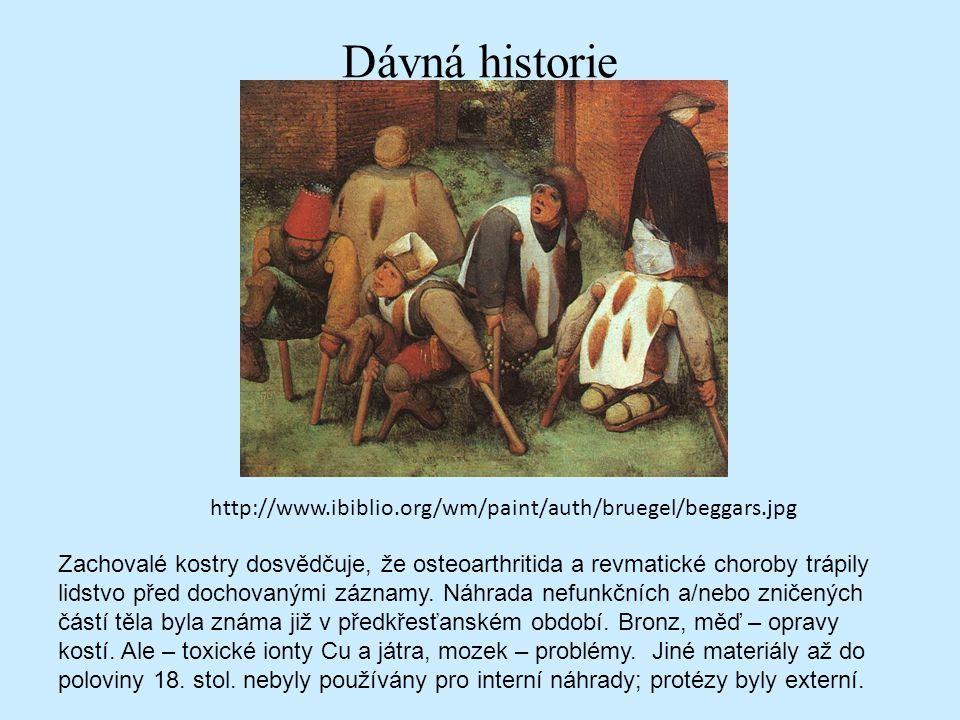 Dávná historie http://www.ibiblio.org/wm/paint/auth/bruegel/beggars.jpg Zachovalé kostry dosvědčuje, že osteoarthritida a revmatické choroby trápily l
