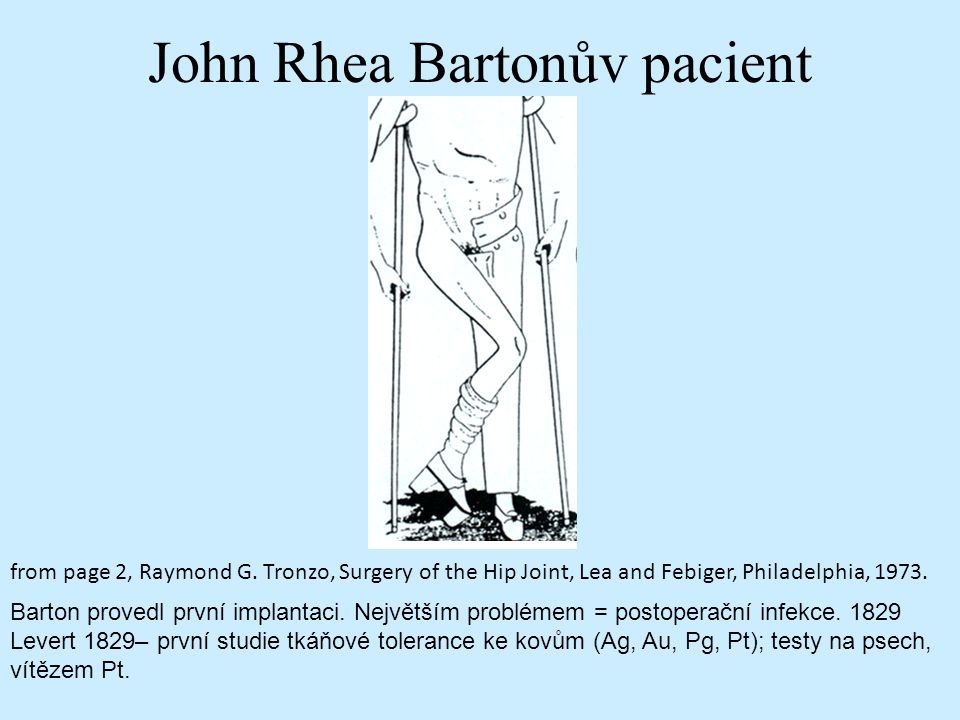 John Rhea Bartonův pacient from page 2, Raymond G. Tronzo, Surgery of the Hip Joint, Lea and Febiger, Philadelphia, 1973. Barton provedl první implant