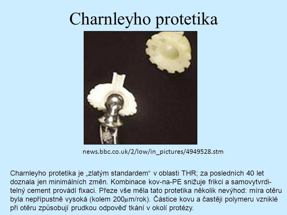 "Charnleyho protetika news.bbc.co.uk/2/low/in_pictures/4949528.stm Charnleyho protetika je ""zlatým standardem"" v oblasti THR; za posledních 40 let dozn"