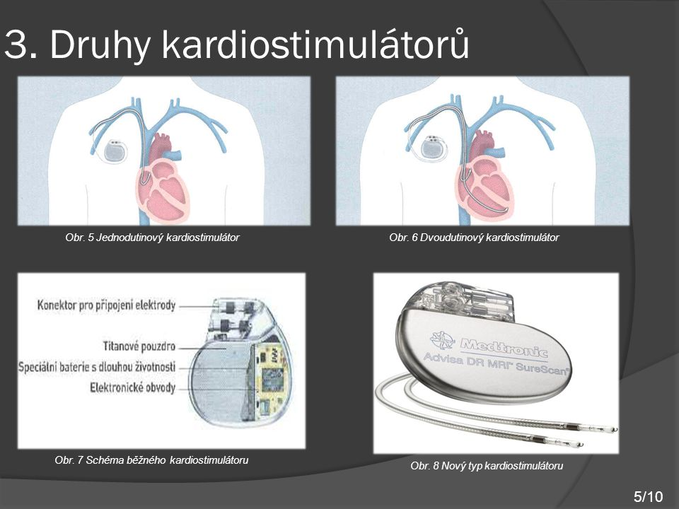 3.Druhy kardiostimulátorů Obr. 9 Typy kardiostimulátorů (zleva od nejstaršího) Obr.