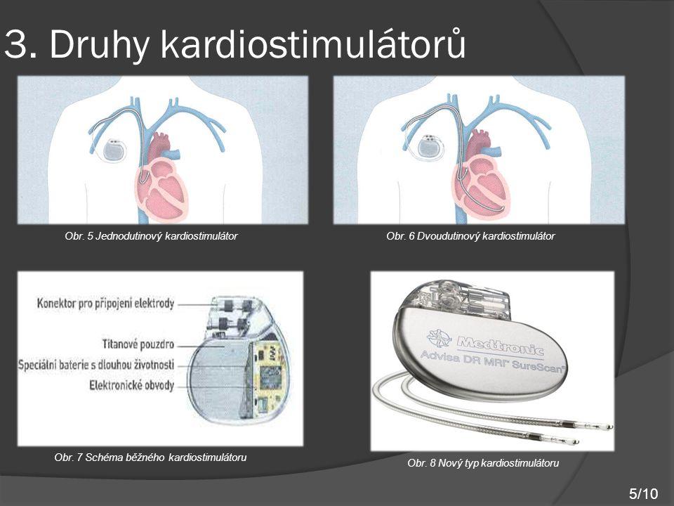 3. Druhy kardiostimulátorů Obr. 5 Jednodutinový kardiostimulátorObr. 6 Dvoudutinový kardiostimulátor Obr. 7 Schéma běžného kardiostimulátoru Obr. 8 No