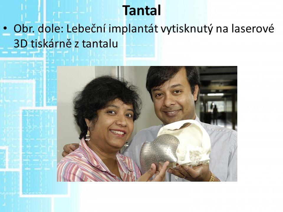 Tantal Obr. dole: Lebeční implantát vytisknutý na laserové 3D tiskárně z tantalu