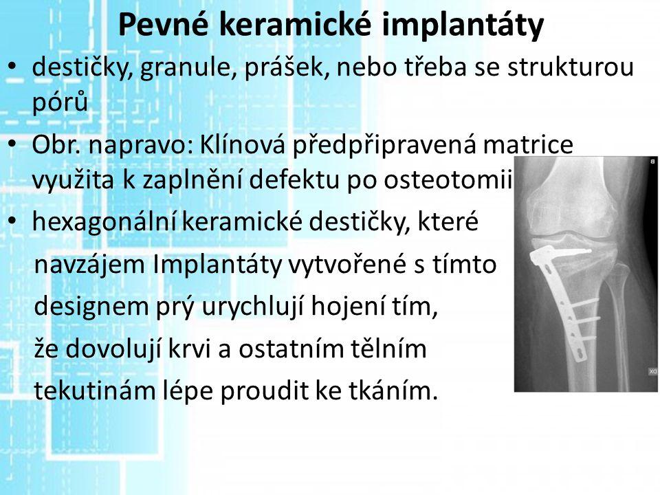 Pevné keramické implantáty destičky, granule, prášek, nebo třeba se strukturou pórů Obr. napravo: Klínová předpřipravená matrice využita k zaplnění de