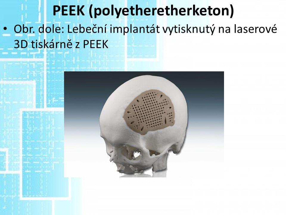 PEEK (polyetheretherketon) Obr. dole: Lebeční implantát vytisknutý na laserové 3D tiskárně z PEEK