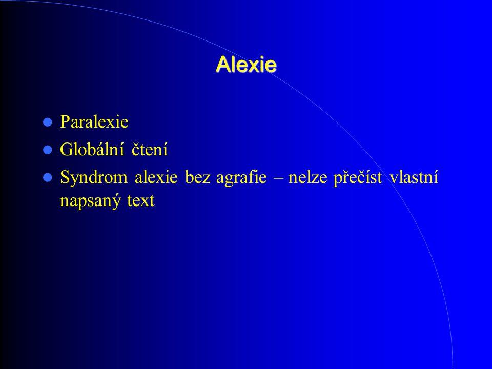 Alexie Paralexie Globální čtení Syndrom alexie bez agrafie – nelze přečíst vlastní napsaný text