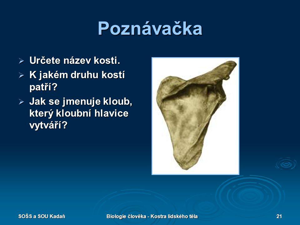 SOŠS a SOU KadaňBiologie člověka - Kostra lidského těla21 Poznávačka  Určete název kosti.  K jakém druhu kostí patří?  Jak se jmenuje kloub, který