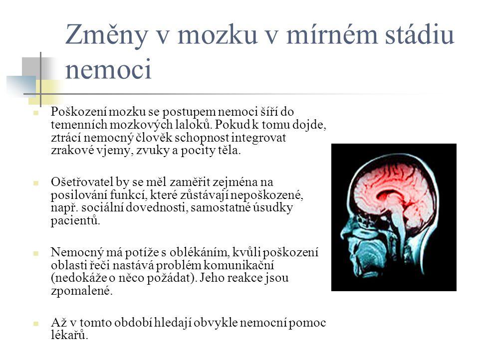 Změny v mozku v mírném stádiu nemoci Poškození mozku se postupem nemoci šíří do temenních mozkových laloků. Pokud k tomu dojde, ztrácí nemocný člověk