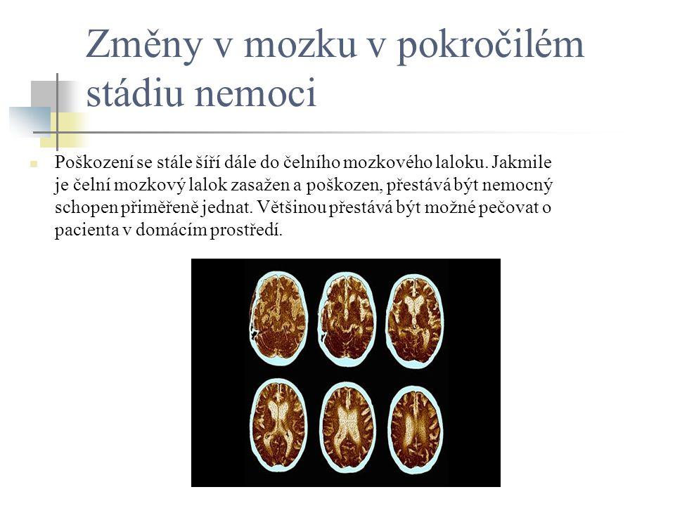 Změny v mozku v pokročilém stádiu nemoci Poškození se stále šíří dále do čelního mozkového laloku. Jakmile je čelní mozkový lalok zasažen a poškozen,