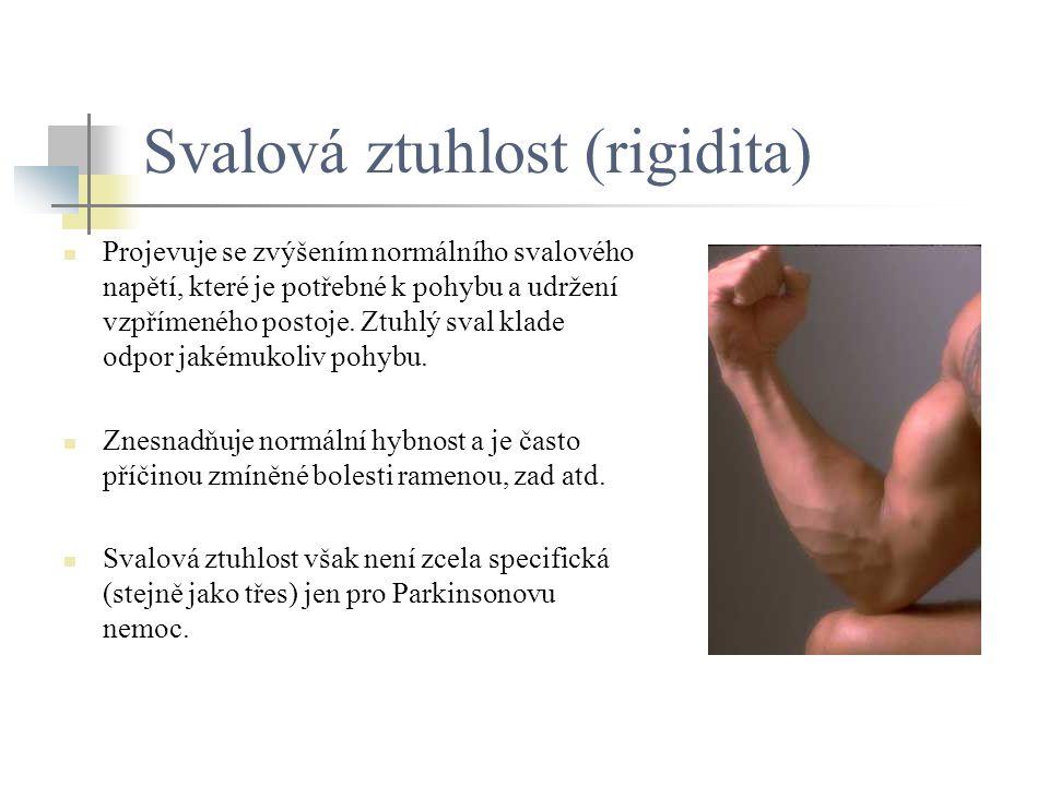 Svalová ztuhlost (rigidita) Projevuje se zvýšením normálního svalového napětí, které je potřebné k pohybu a udržení vzpřímeného postoje. Ztuhlý sval k