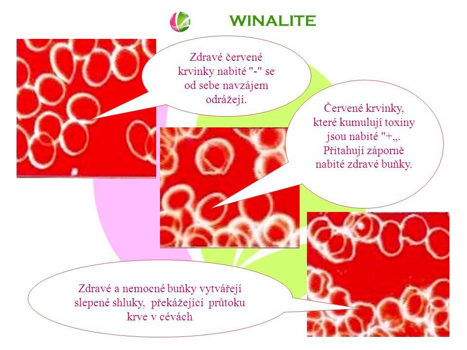 WINALITE Zdravé červené krvinky nabité - se od sebe navzájem odrážejí.